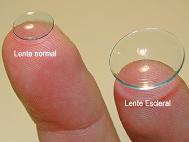 diferencia de tamaño entre las lentes de contacto normales y las lentes esclerales
